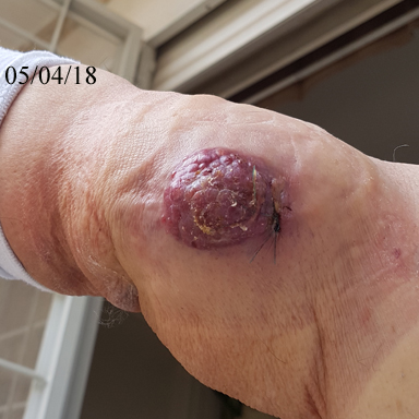 Large cancerous tumor on the man's right arm